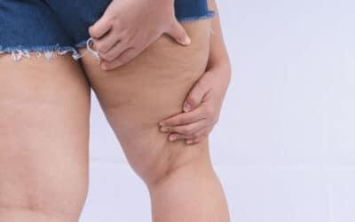 ¿Cómo saber si tengo lipedema? Causas, síntomas  y tratamiento